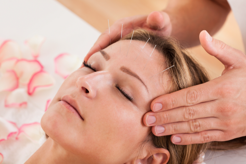 Balancing Your Energy with acupuncture