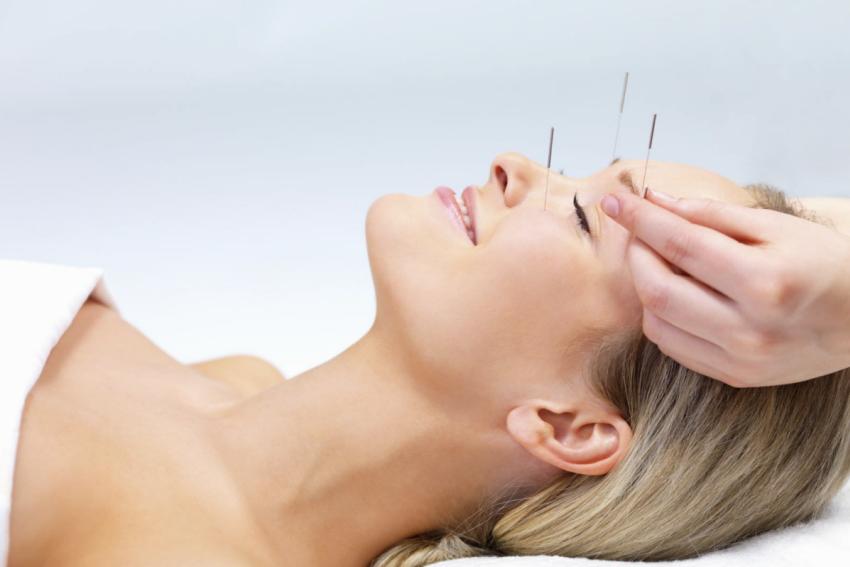 acupuncture facelift Glendale